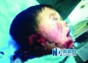 湖北6岁男童被婶婶割双耳砍下巴
