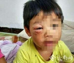 老婆离家出走 男子虐待4岁亲生子朋友圈晒图