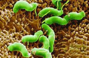 专家:幽门螺杆菌有致胃癌风险 首次根除很重要