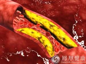 溶栓治疗或可降低血栓复发几率