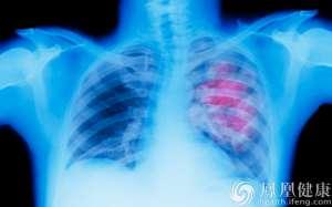北京市发布2015年健康白皮书 恶性肿瘤最致命肺癌排第一