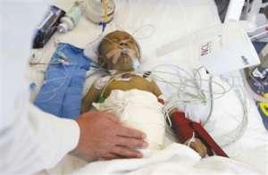 父亲强行跨血型供肝开始发挥功能 患儿术后苏醒