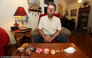 为治疗癌症 男子脸上被挖出一个大洞(图)