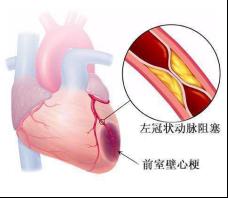 心梗合并心衰治疗方法是什么