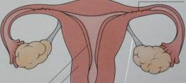 子宫内膜炎引起原因
