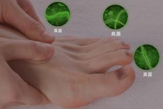 脚上的灰指甲好治吗?应对灰指甲,选对方法很重要