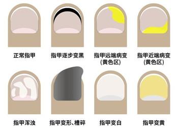 日本灰指甲水和亮甲成分一样吗?选亮甲有保障