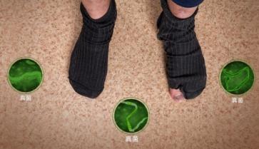 脚气和灰指甲是什么关系?真相终于揭开